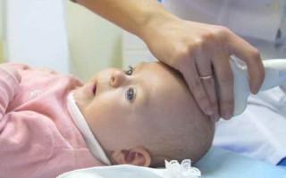 УЗИ головного мозга у грудничка: показания, противопоказания, особенности проведения