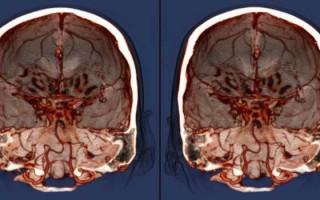 Лейкоареоз головного мозга, этиология и симптомы заболевания, стадии развития