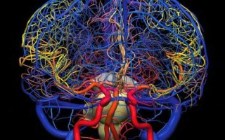Ангиография сосудов головного мозга — показания, этапы проведения