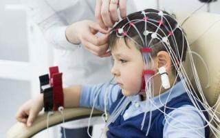 Проведение ЭЭГ головного мозга ребенку, показания и противопоказания к процедуре
