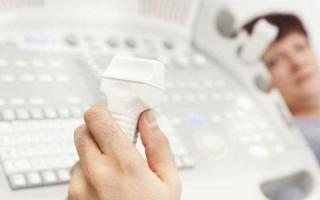 Транскраниальная допплерография сосудов головного мозга: особенности проведения, информативность