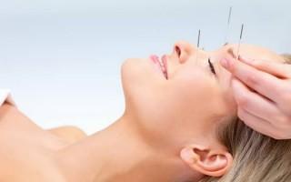 Иглоукалывание при неврите лицевого нерва: техника процедуры