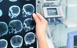 Что такое фибриллярная астроцитома, и какой прогноз на выздоровление имеют больные с таким диагнозом
