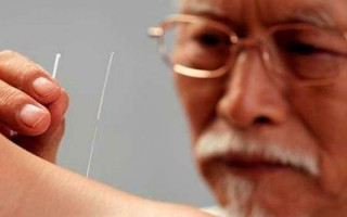 Китайское лечение иглами: последствия ишемического инсульта и особенности проведения