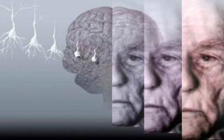 Болезнь Альцгеймера нельзя вылечить, но можно затормозить