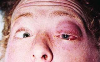 Тромбоз кавернозного синуса: основные методы лечения