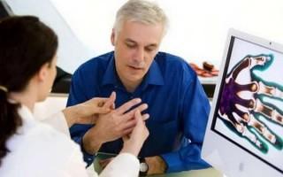 Немеет мизинец на левой руке: причины, симптомы, терапия