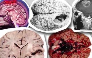 Как передается менингит, и можно ли оградить себя от этого опасного заболевания