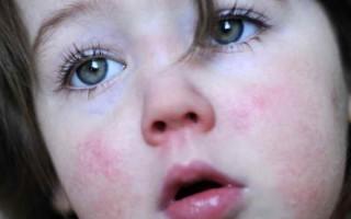 Кожевниковская эпилепсия: причины патологии и главные признаки