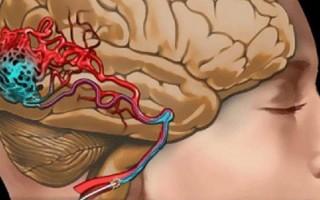 Артериальная мальформация: причины, симптомы, способы лечения