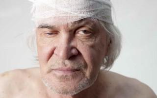 Характеристика эпидуральной гематомы, симптомы и лечение