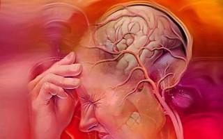 Полезно знать, как укрепляются сосуды головного мозга