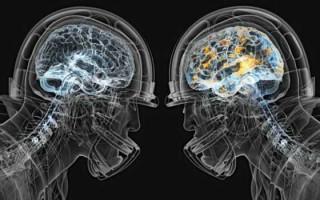 Неуточненная энцефалопатия: стоит ли бояться диагноза