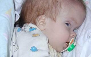 Признаки внутренней гидроцефалии: как распознать на начальной стадии