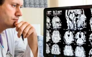 Когда стоит делать МРТ головного мозга с расшифровкой, и что дает такой метод диагностики