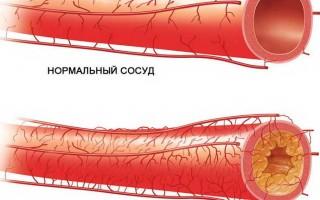 Атеросклероз сосудов головного мозга: симптомы, прогнозы, профилактика