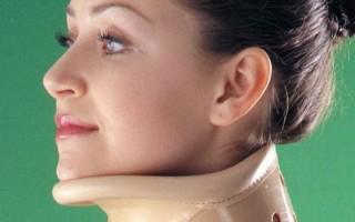 Как помогает воротник Шанца при остеохондрозе шейного отдела позвоночника