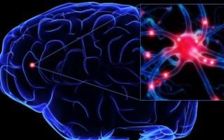 Как распознать нарушения мозгового кровообращения, и чем опасна такая патология
