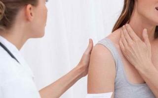 Симптомы шейного остеохондроза у женщин, причины появления и терапия