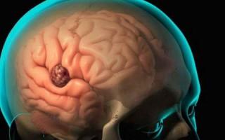 В чем опасность абсцесса мозга, и как лечить такое заболевание
