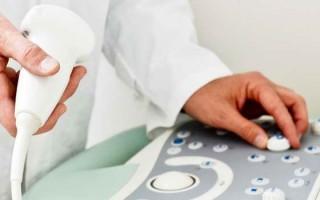 Эффективность обследования сосудов шеи и головы УЗДГ-методом