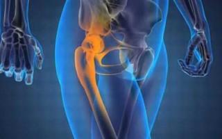 Остеохондроз тазобедренного сустава: особенности течения и лечения болезни