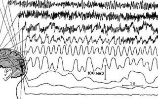 Легкие диффузные изменения биоэлектрической активности головного мозга: симптоматика, причины, лечение