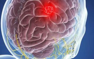 Симптомы и методы лечения менингиомы головного мозга