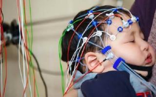 Особенности проведения эхо ЭГ головного мозга у детей