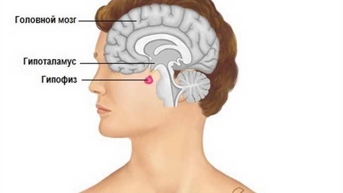Аденома гипофиза в зависимости от избыточного гормона