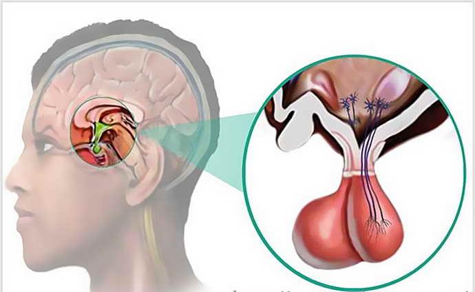 аденома головного мозга недостаточно изучена