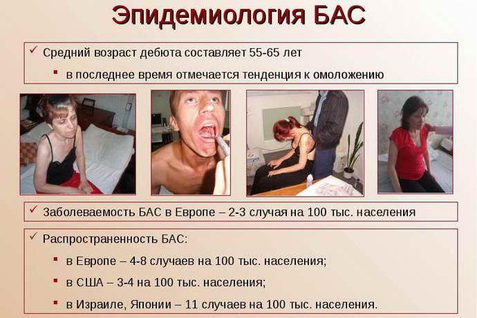 Этиология амиотрофического бокового склероза