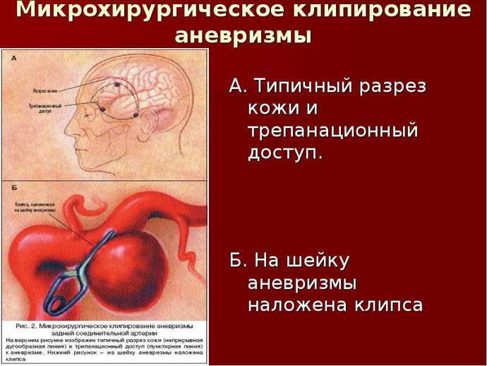 Клипирование аневризмы головного мозга