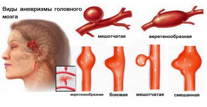 аневризма головного мозга последствия после операции