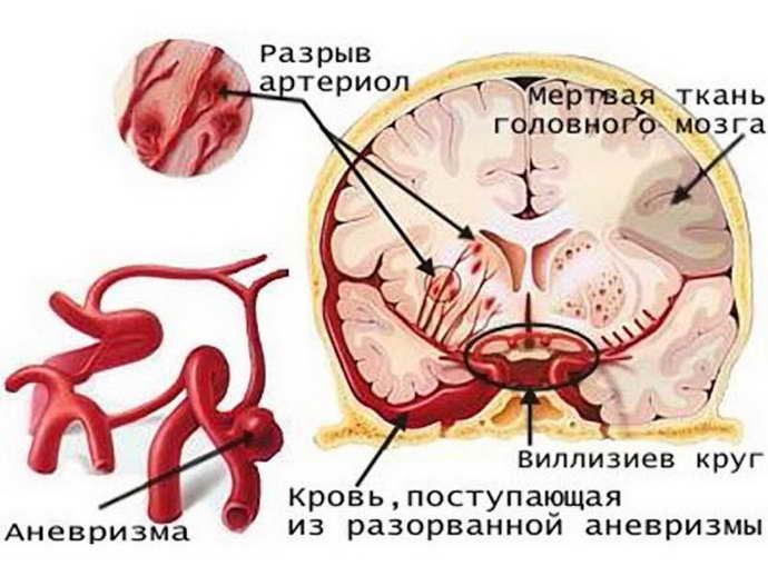 Аневразма головного мозга небольших размеров
