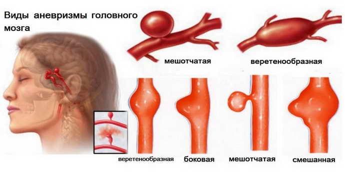Аневризма сосудов головного мозга классифицируется по форме, объему и типу