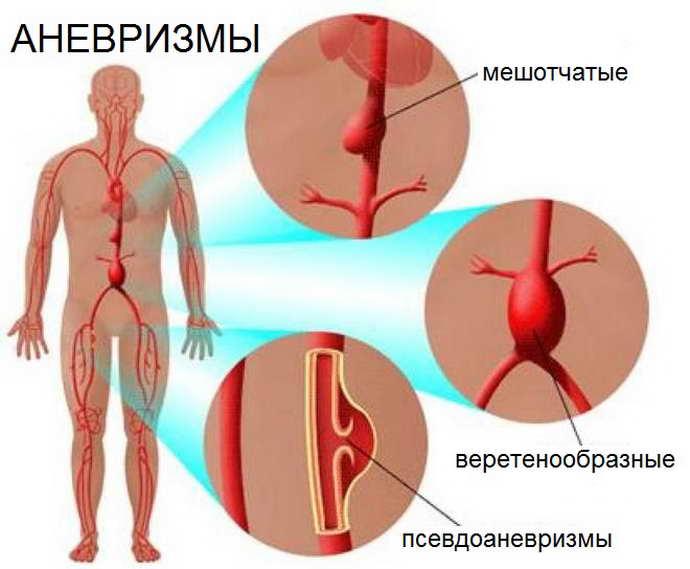 Артериовенозная аневризма сосудов головного мозга