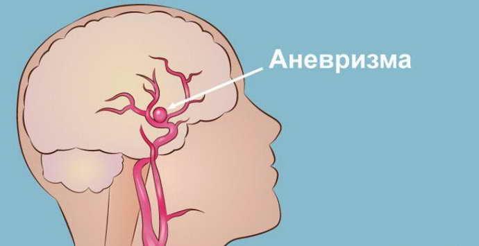 Разрыв аневризмы сосудов головного мозга