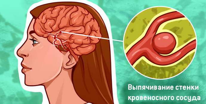 у человека аневризма сосудов головного мозга