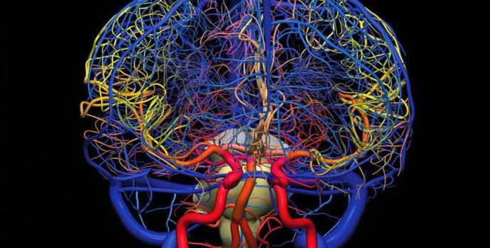 Ангиография сосудов головного мозга как проводится