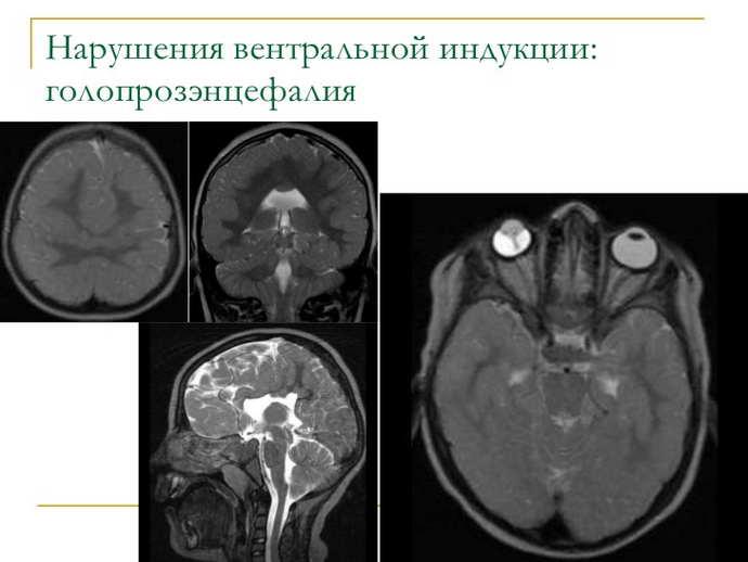 Внутримозговые аномалии