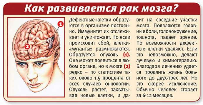 астроцитома фибриллярная прогноз