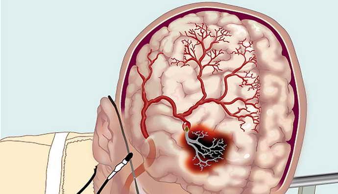 Атеросклероз церебральных сосудов головного мозга когда появляется