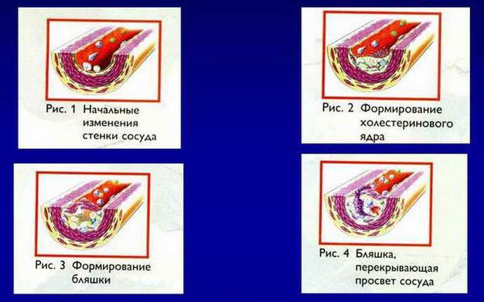 Стадии атеросклероза как проявляеются