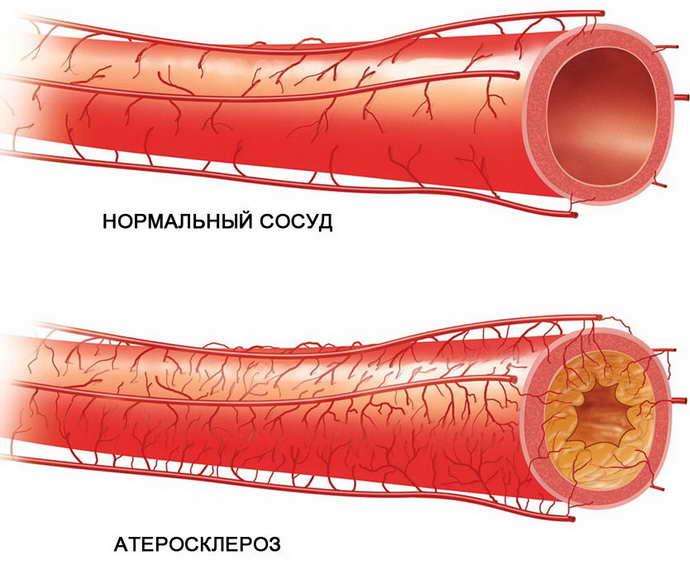 Холестериновые бляшки в сосудах головного мозга