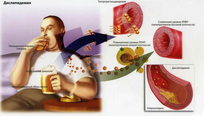Атеросклероз сосудов головного мозгапрогрессирует вследствие проблем с метаболизмом