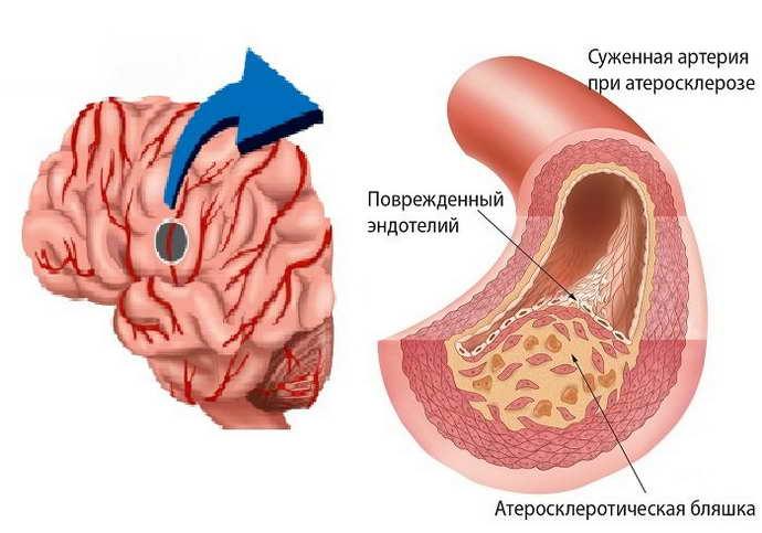 Почему возникают бляшки в артериях