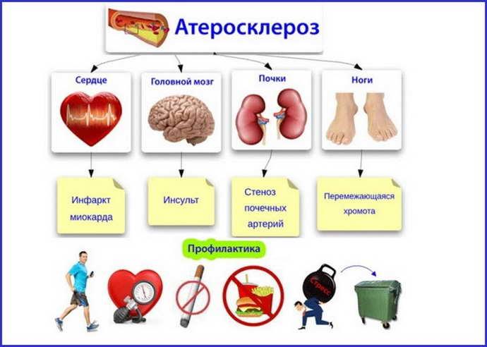 Атеросклероз церебральных артерийразвивается медленно