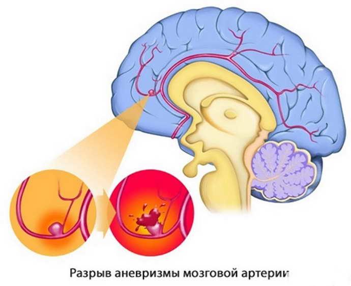 У кого возникает церебральный атеросклероз