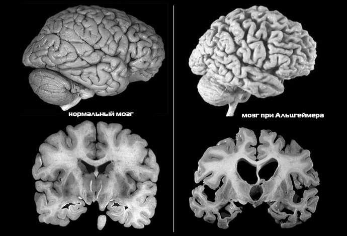 Стадии атрофии мозга